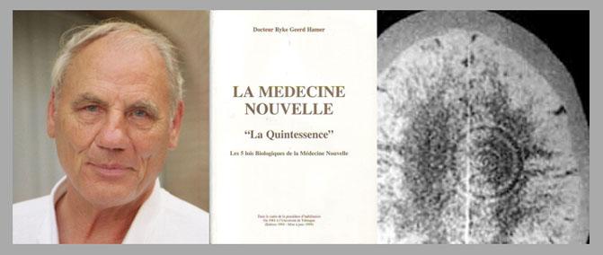 hamer - Nouvelle médecine Germanique - Santé Vivante